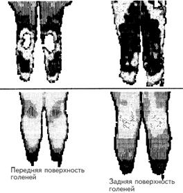 paralich-analnogo-sfinktera